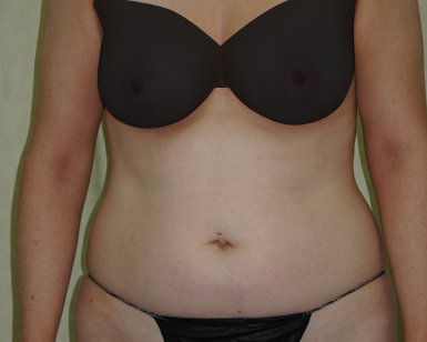 Vaser Liposuction Before and After Image