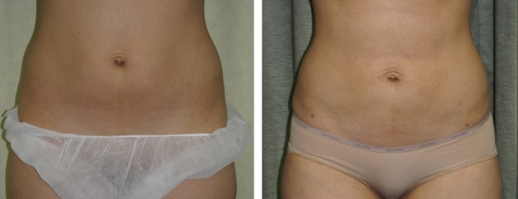 Lipo Before and After images