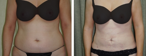 Laser Liposuction Before and after images