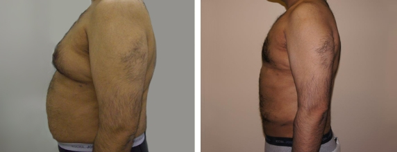 Smart Lipo Before and after images